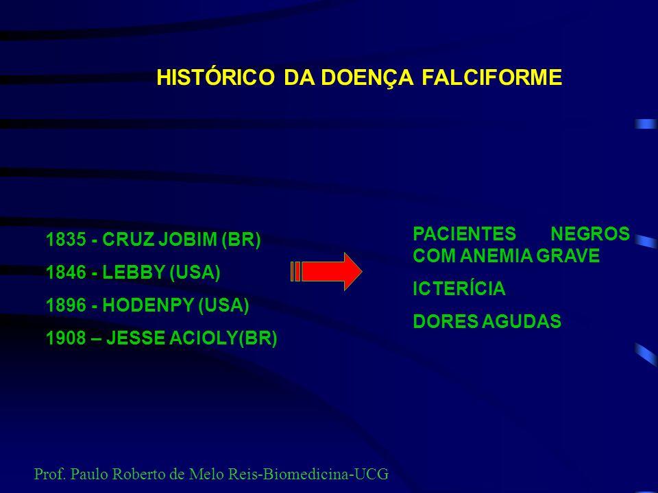 Hemoglobina S É causada por uma mutação no gene beta da globina. Há substituição de um base nitrogenada do códon GAC para GTC, resultando na substitui