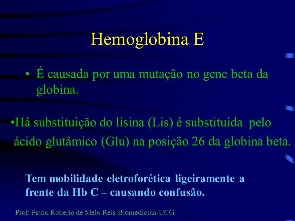 Hemoglobina D D Los Angeles o ác. glutâmico (Glu) é substituído pela glutamina (Gln) na posição 121 da globina beta. D Bushman A Glicina (Gli) é subst