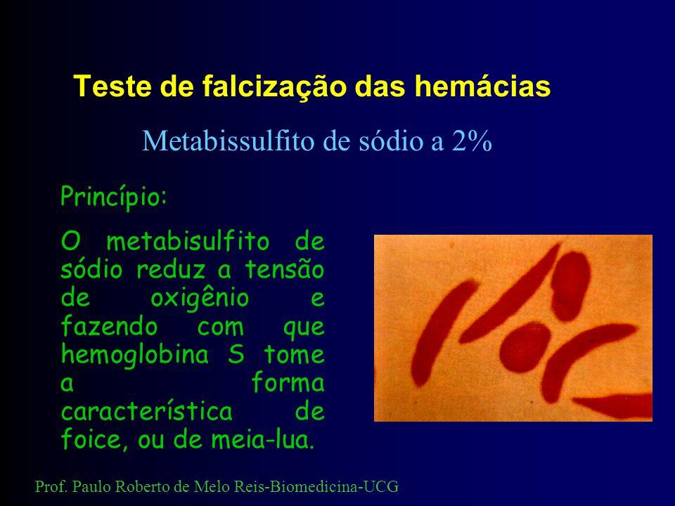 Coloração intra-eritrocitária de Hemoglobina Fetal Método de Kleihauer e Betke (modificado por Shepard e cols., 1962) Princípio: A hemoglobina Fetal é