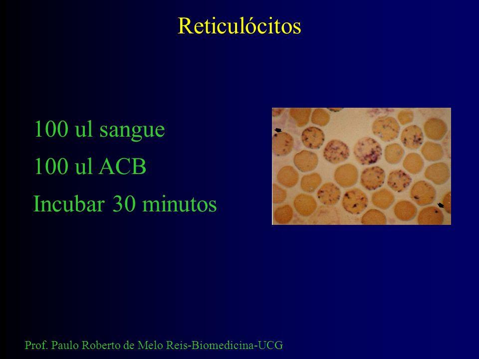 Pesquisa intra-eritrocitária Hemoglobina H Corpos de Heinz Hemoglobinas instáveis 100 ul sangue 200 ul ACB Incubar 2 horas Prof. Paulo Roberto de Melo