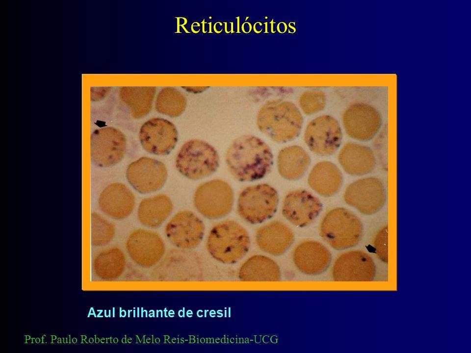 Reticulócitos 100 ul sangue 100 ul ACB Incubar 30 minutos Prof. Paulo Roberto de Melo Reis-Biomedicina-UCG