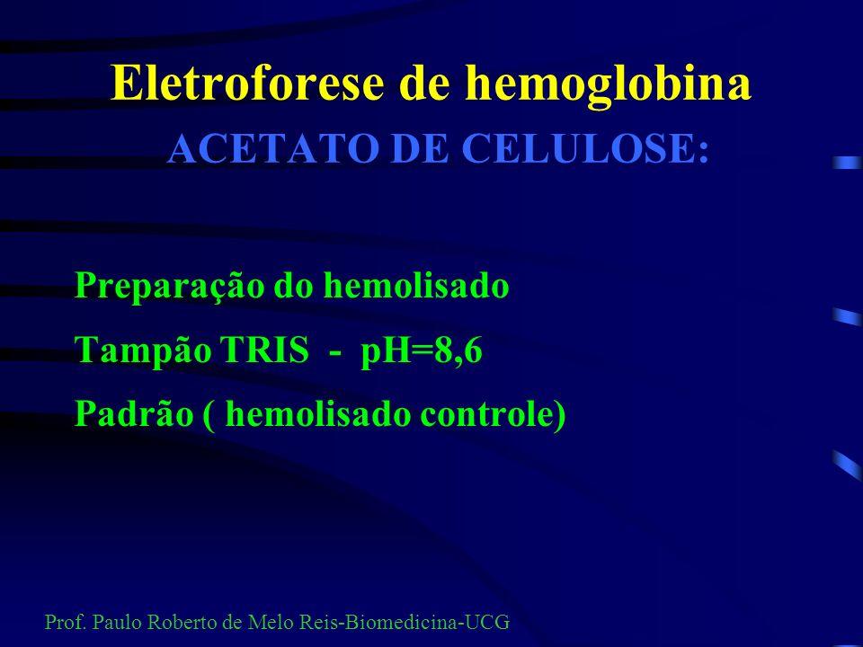 Eletroforese çA migração indica o sinal da carga da partícula. çEste sinal será oposto ao do pólo para onde irá migrar. Prof. Paulo Roberto de Melo Re