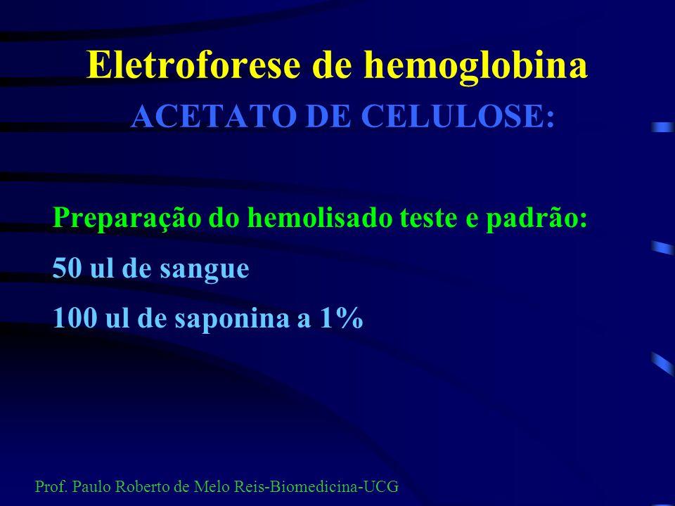 Eletroforese de hemoglobina ACETATO DE CELULOSE: Preparação do hemolisado Tampão TRIS - pH=8,6 Padrão ( hemolisado controle) Prof.