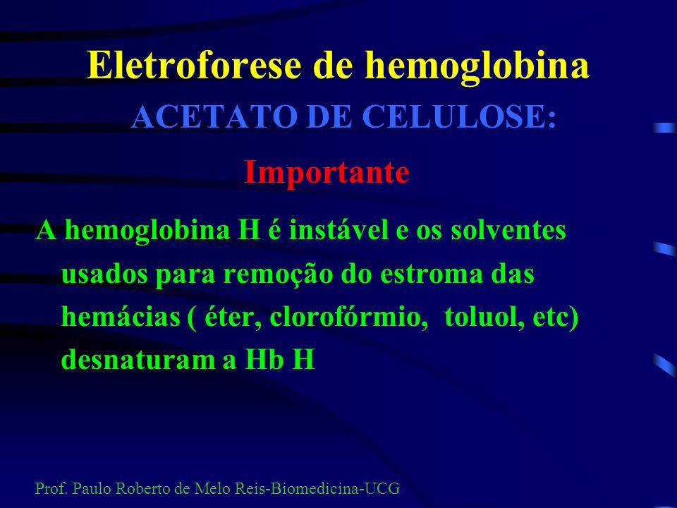 Eletroforese de hemoglobina ACETATO DE CELULOSE: Preparação do hemolisado teste e padrão: 50 ul de sangue 100 ul de saponina a 1% Prof. Paulo Roberto