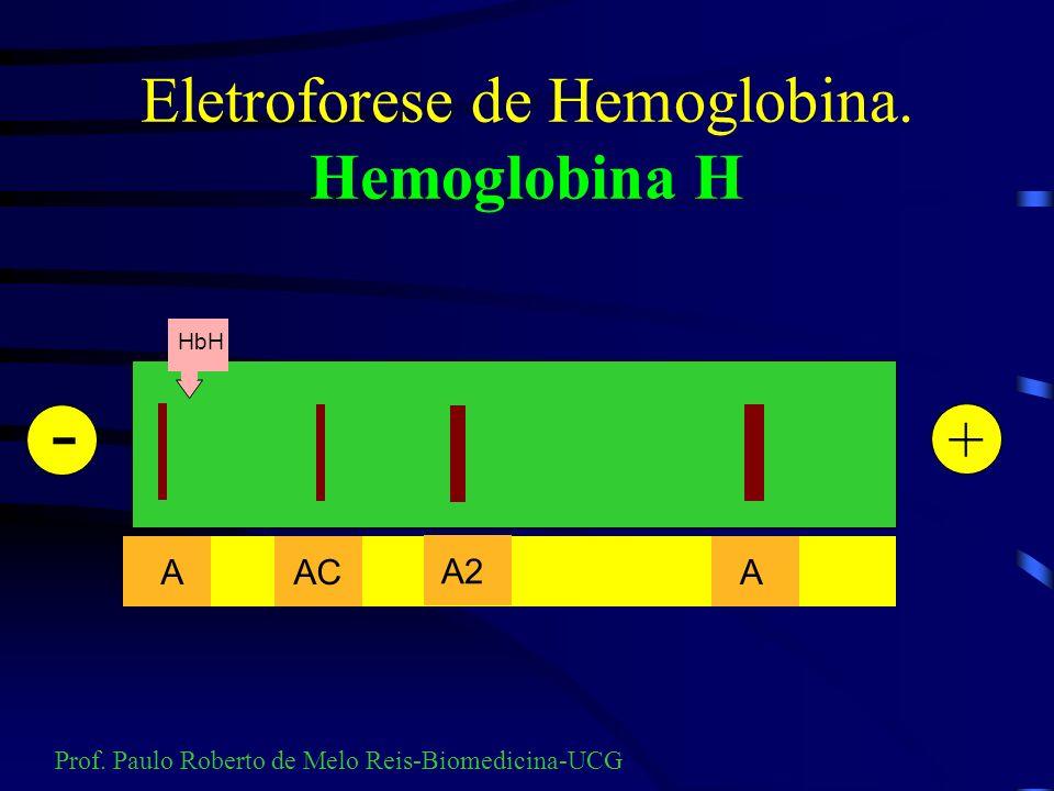 Eletroforese de hemoglobina ACETATO DE CELULOSE: A hemoglobina H é instável e os solventes usados para remoção do estroma das hemácias ( éter, clorofó