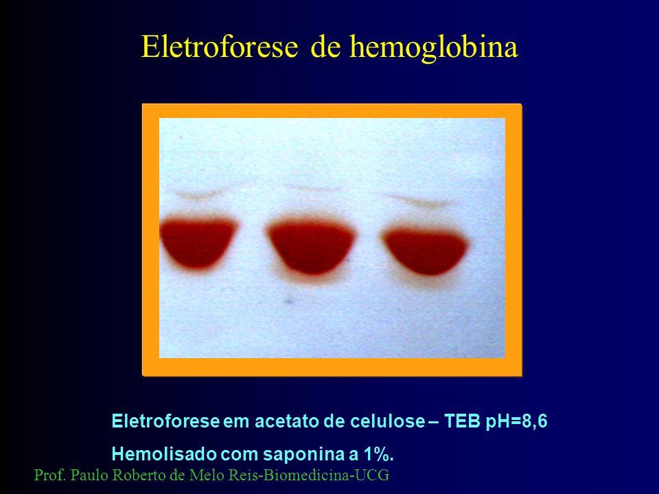 - + A ACA2A HbH Eletroforese de Hemoglobina. Hemoglobina H Prof. Paulo Roberto de Melo Reis-Biomedicina-UCG