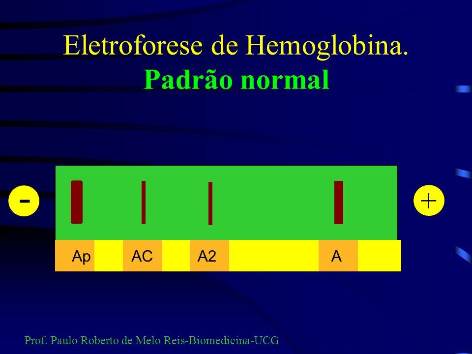 Talassemia alfa Detalhe Hb H Prof. Paulo Roberto de Melo Reis-Biomedicina-UCG