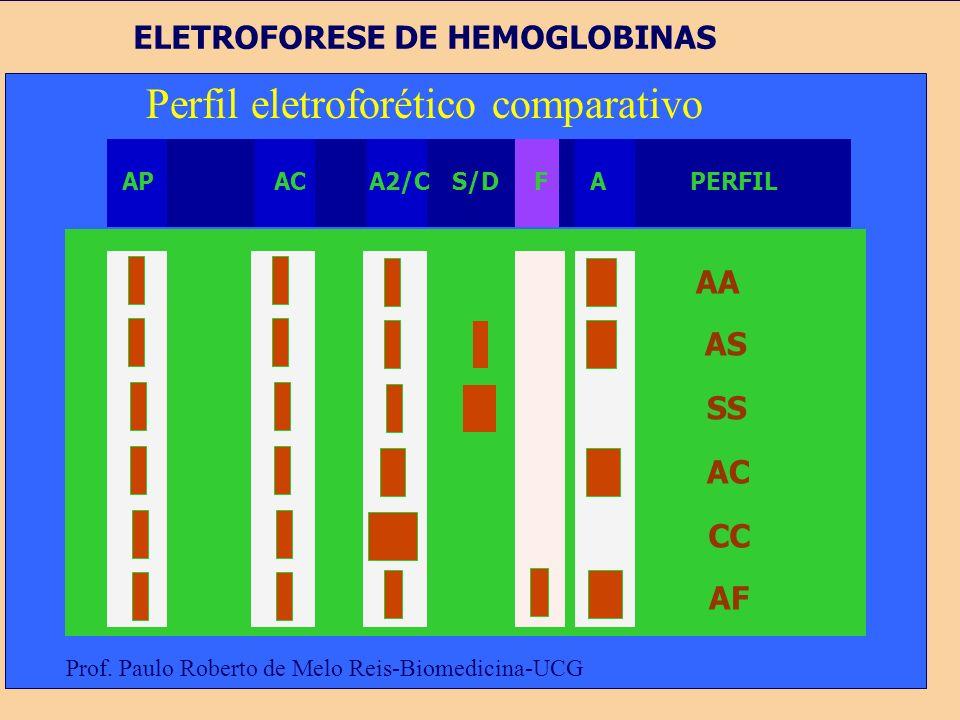 Eletroforese de Hemoglobina. Padrão normal - + Ap AC A2 A Prof. Paulo Roberto de Melo Reis-Biomedicina-UCG