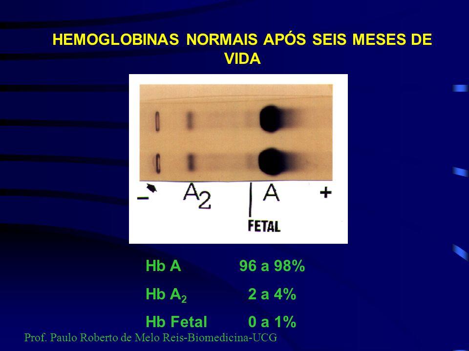 ELETROFORESE DE Hb EMBRIONÁRIAS Prof. Paulo Roberto de Melo Reis-Biomedicina-UCG