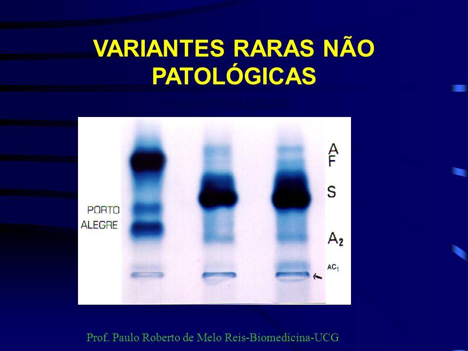 HEMOGLOBINAS NORMAIS APÓS SEIS MESES DE VIDA Hb A96 a 98% Hb A 2 2 a 4% Hb Fetal 0 a 1% Prof. Paulo Roberto de Melo Reis-Biomedicina-UCG