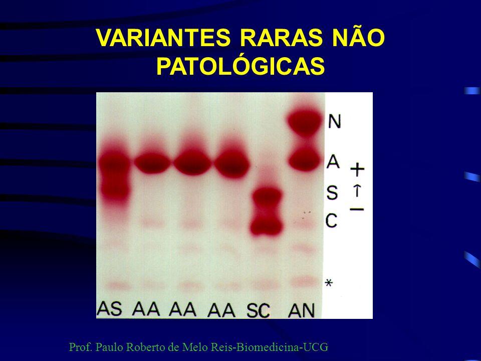 VARIANTES RARAS NÃO PATOLÓGICAS Hb PORTO ALEGRE Prof. Paulo Roberto de Melo Reis-Biomedicina-UCG