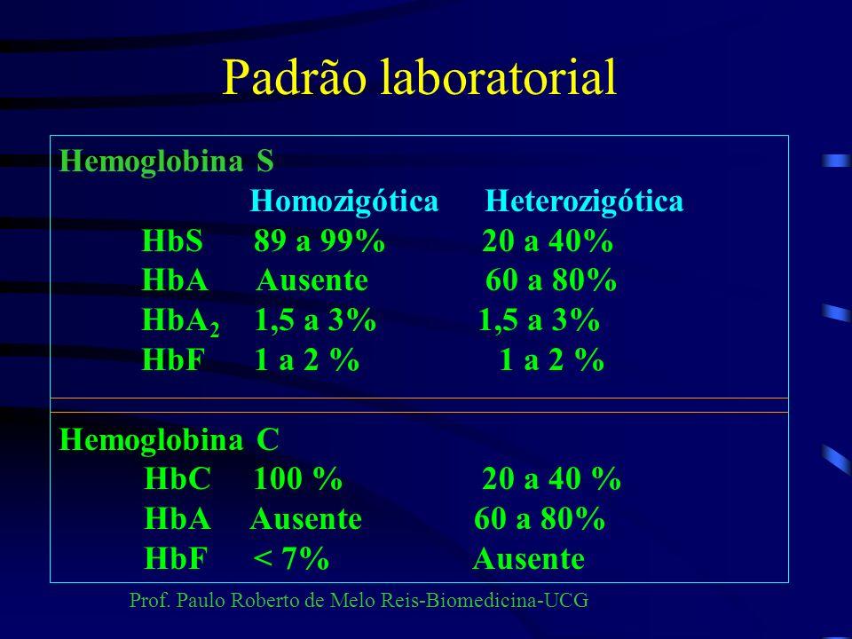 Eletroforese de hemoglobina Eletroforese em ágar ácido – fosfato pH=6,2 Hemolisado com saponina a 1%.