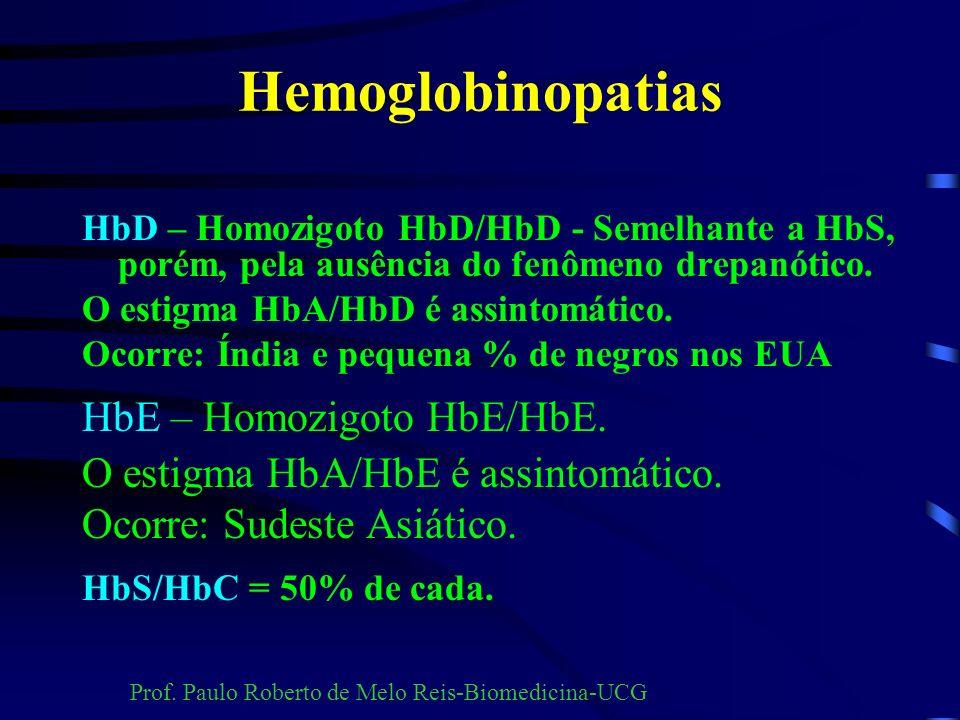Outras hemoglobinas HbG Norfolk Hb de Bart Hb Lepore Hb Porto Alegre Hb Gun Hill Hb Freiburg HbM Boston HbM Saskatoon HbM Iwate HbM Hyde Park HbF Texa