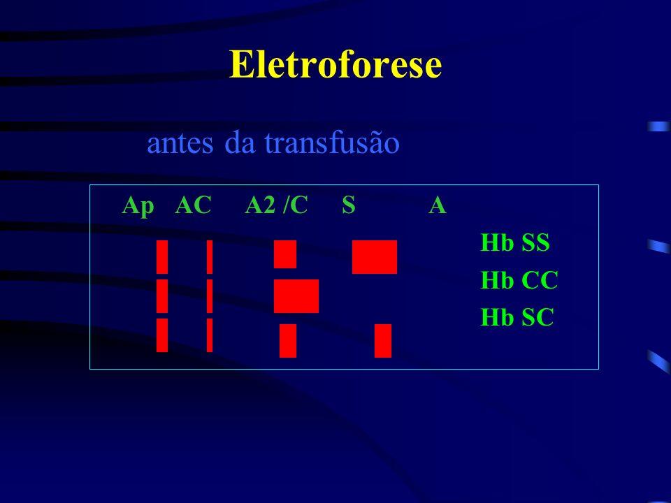 Hemoglobinopatias HbD – Homozigoto HbD/HbD - Semelhante a HbS, porém, pela ausência do fenômeno drepanótico. O estigma HbA/HbD é assintomático. Ocorre