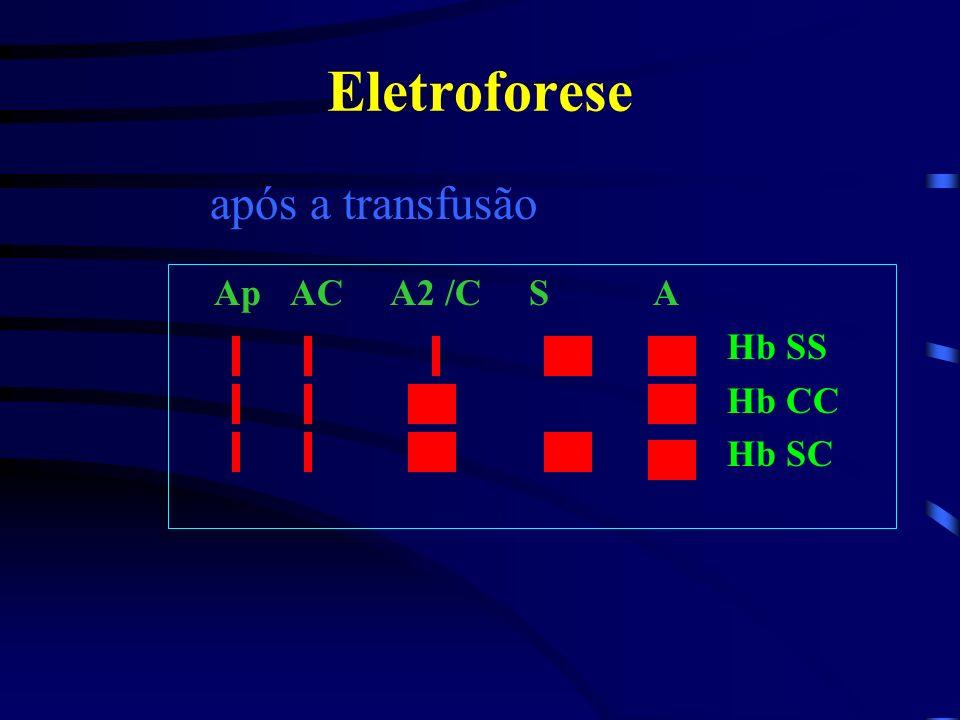Eletroforese Ap AC A2 /C S A Hb SS Hb CC Hb SC antes da transfusão