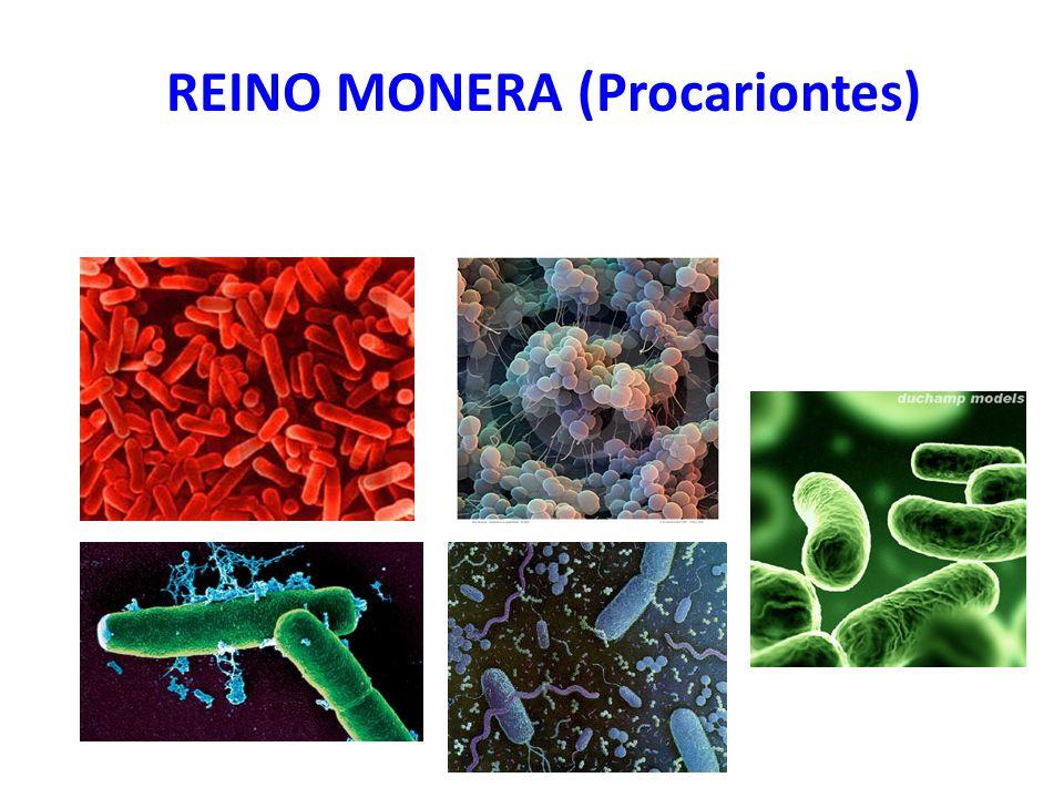 São as células mais simples, chamadas PROCARIONTES.