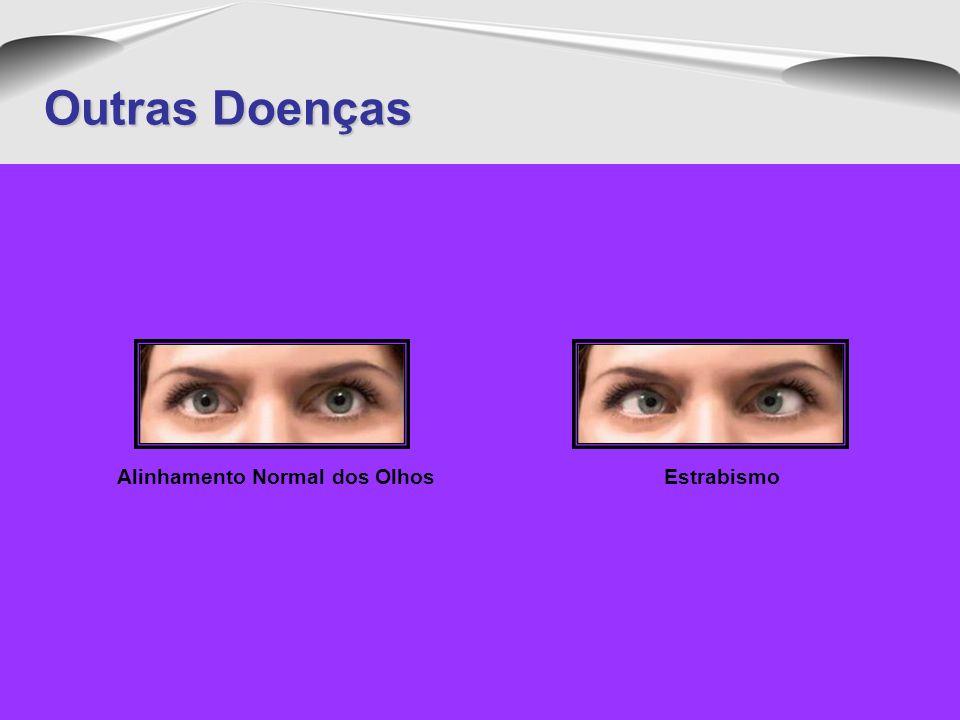 Degeneracão MacularDesprendimento da RetinaGlaucomaCatarata Outras Doenças O GLAUCOMA VAI DIMINUINDO AOS POUCOS O SEU CAMPO VISUAL ATÉ CAUSAR VVV O GL