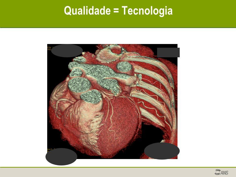 Qualidade = Tecnologia