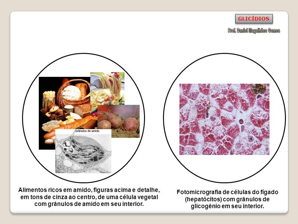 Alimentos ricos em amido, figuras acima e detalhe, em tons de cinza ao centro, de uma célula vegetal com grânulos de amido em seu interior. Fotomicrog