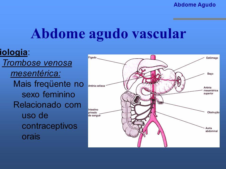 Abdome agudo vascular Etiologia: Trombose venosa mesentérica: Mais freqüente no sexo feminino Relacionado com uso de contraceptivos orais Abdome Agudo