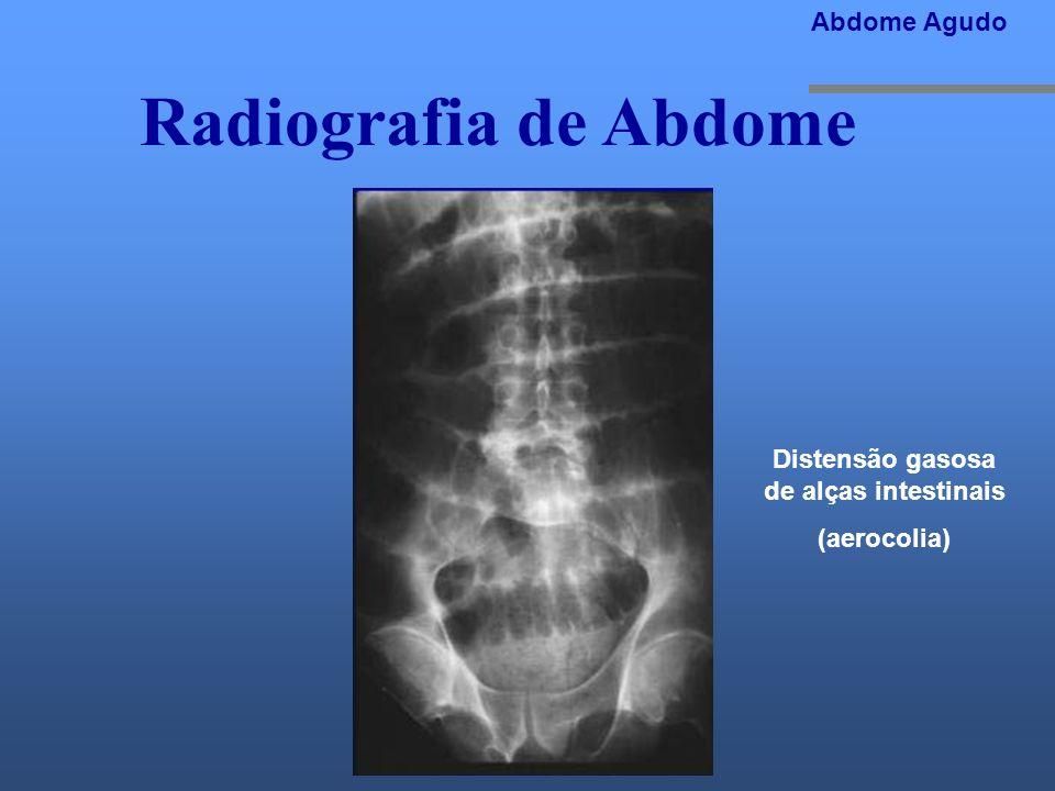 Radiografia de Abdome Abdome Agudo Distensão gasosa de alças intestinais (aerocolia)