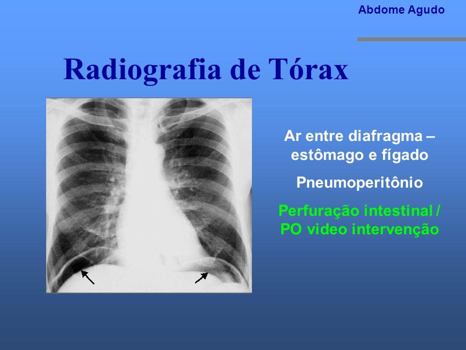 Radiografia de Tórax Abdome Agudo Ar entre diafragma – estômago e fígado Pneumoperitônio Perfuração intestinal / PO video intervenção