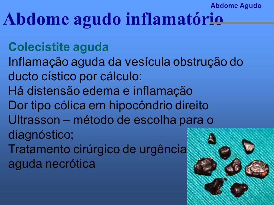 Abdome agudo inflamatório Abdome Agudo Colecistite aguda Inflamação aguda da vesícula obstrução do ducto cístico por cálculo: Há distensão edema e inf