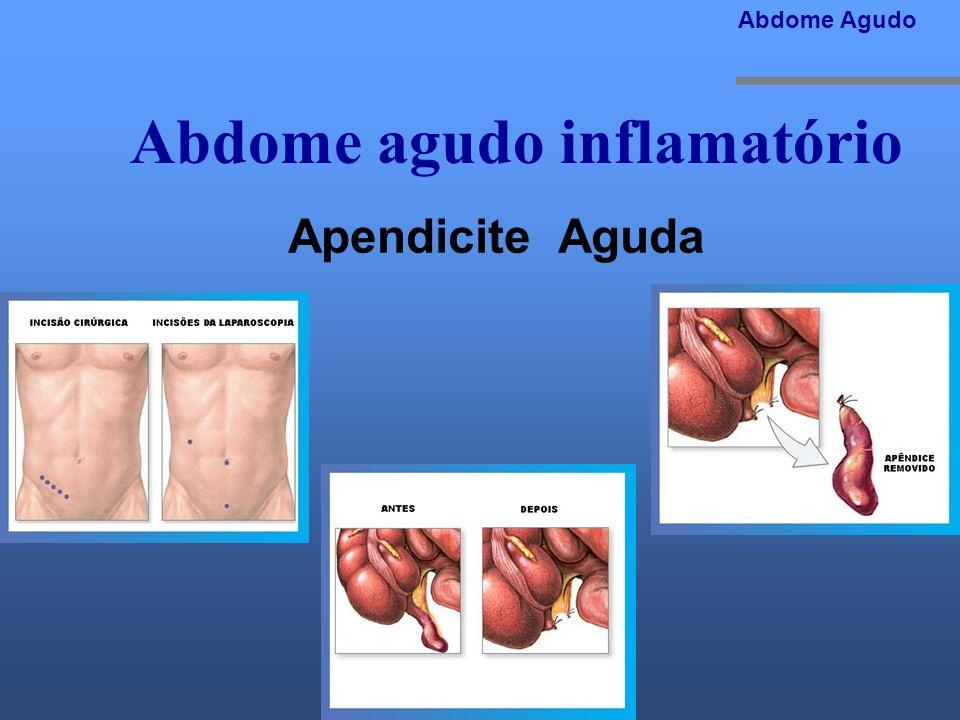 Abdome agudo inflamatório Abdome Agudo Apendicite Aguda A cirurgia pode ser feita de modo convencional (através de uma incisão no lado inferior direit