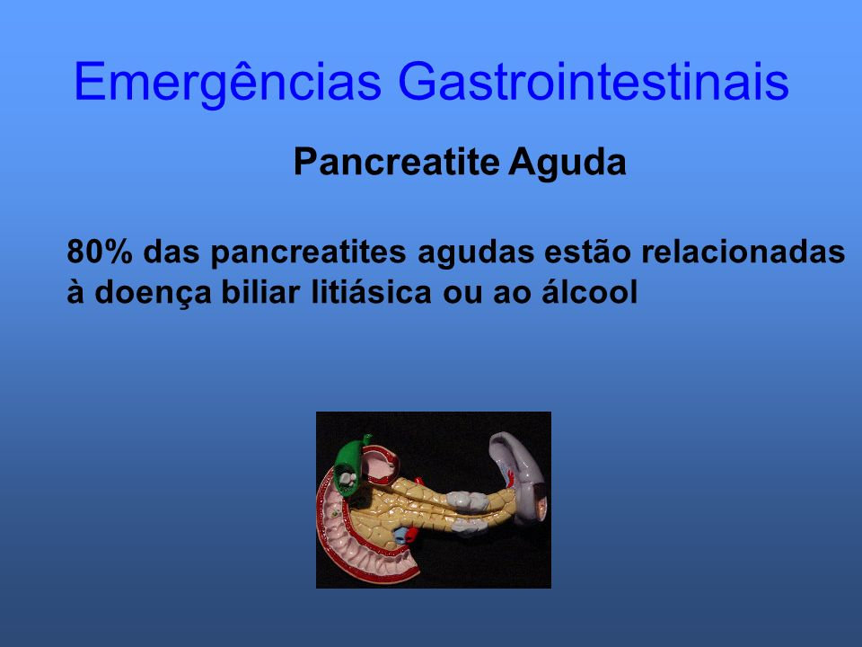 Emergências Gastrointestinais Pancreatite Aguda 80% das pancreatites agudas estão relacionadas à doença biliar litiásica ou ao álcool