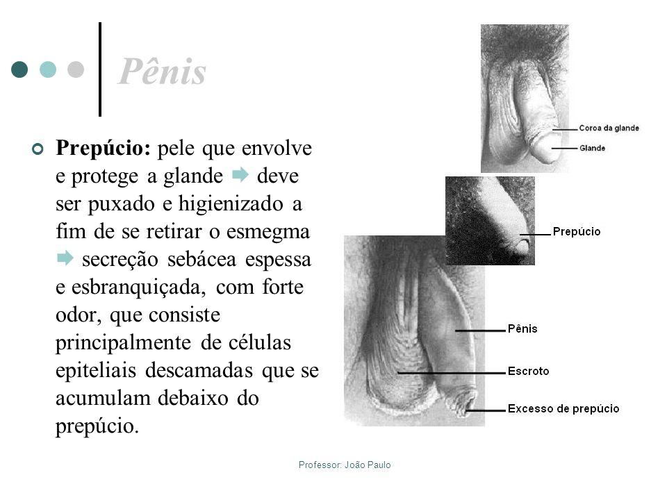 Professor: João Paulo Pênis Prepúcio: pele que envolve e protege a glande deve ser puxado e higienizado a fim de se retirar o esmegma secreção sebácea