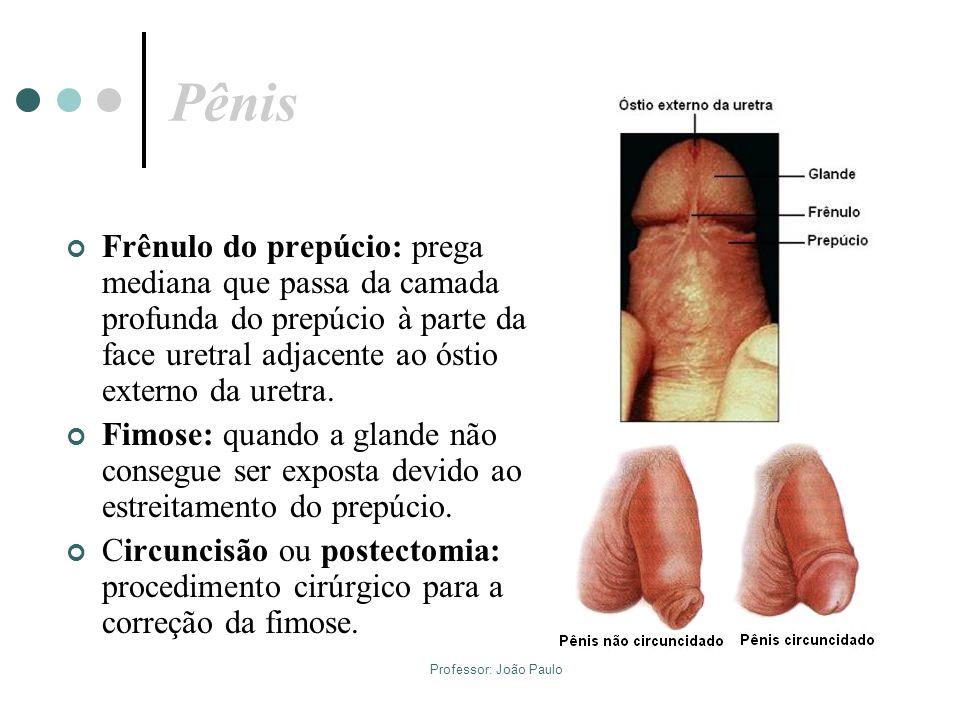 Professor: João Paulo Pênis Frênulo do prepúcio: prega mediana que passa da camada profunda do prepúcio à parte da face uretral adjacente ao óstio ext