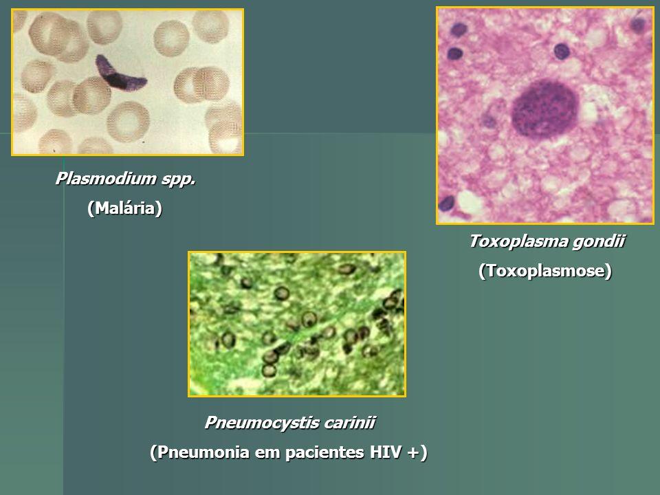 Plasmodium spp. (Malária) Toxoplasma gondii (Toxoplasmose) Pneumocystis carinii (Pneumonia em pacientes HIV +)