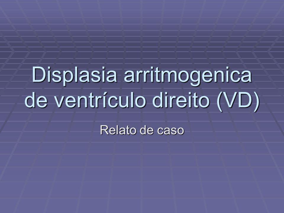 Displasia arritmogenica de ventrículo direito (VD) Relato de caso