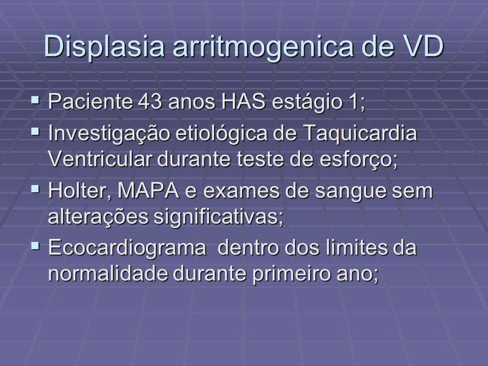 Displasia arritmogenica de VD Paciente 43 anos HAS estágio 1; Paciente 43 anos HAS estágio 1; Investigação etiológica de Taquicardia Ventricular duran