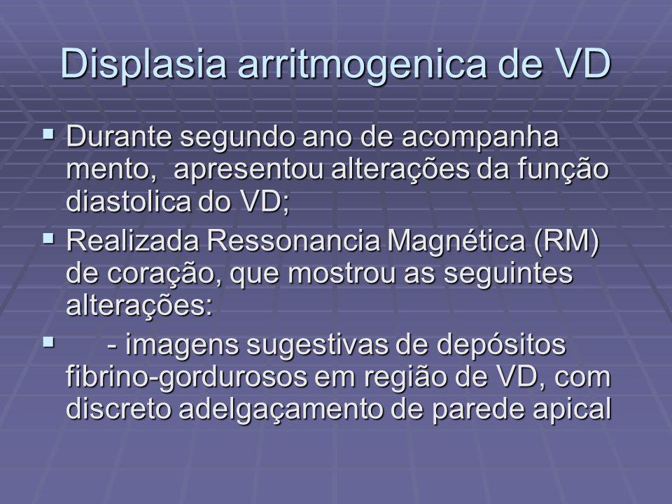 Displasia arritmogenica de VD - Hiperintensidade de sinal em repouso junto á cordoalha dos grandes folhetos da valva tricúspide; - Hiperintensidade de sinal em repouso junto á cordoalha dos grandes folhetos da valva tricúspide; Confirmação por Tomografia Computadori zada (TC) Multislice com sobreposição de imagens; Confirmação por Tomografia Computadori zada (TC) Multislice com sobreposição de imagens;