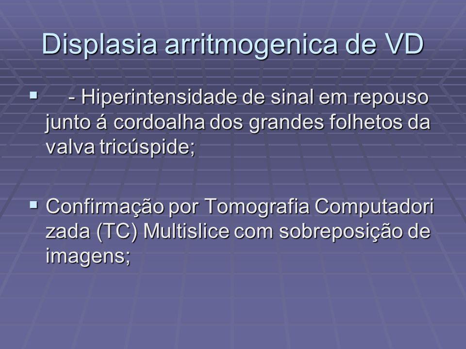 Displasia arritmogenica de VD - Hiperintensidade de sinal em repouso junto á cordoalha dos grandes folhetos da valva tricúspide; - Hiperintensidade de