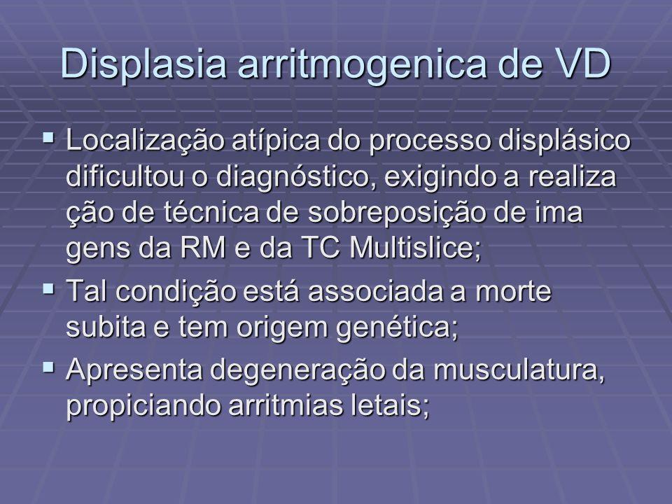 Displasia arritmogenica de VD Localização atípica do processo displásico dificultou o diagnóstico, exigindo a realiza ção de técnica de sobreposição d