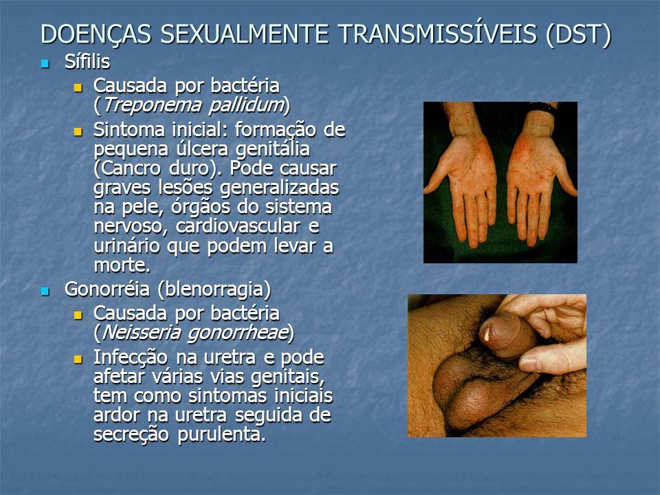 DOENÇAS SEXUALMENTE TRANSMISSÍVEIS (DST) Sífilis Sífilis Causada por bactéria (Treponema pallidum) Causada por bactéria (Treponema pallidum) Sintoma i