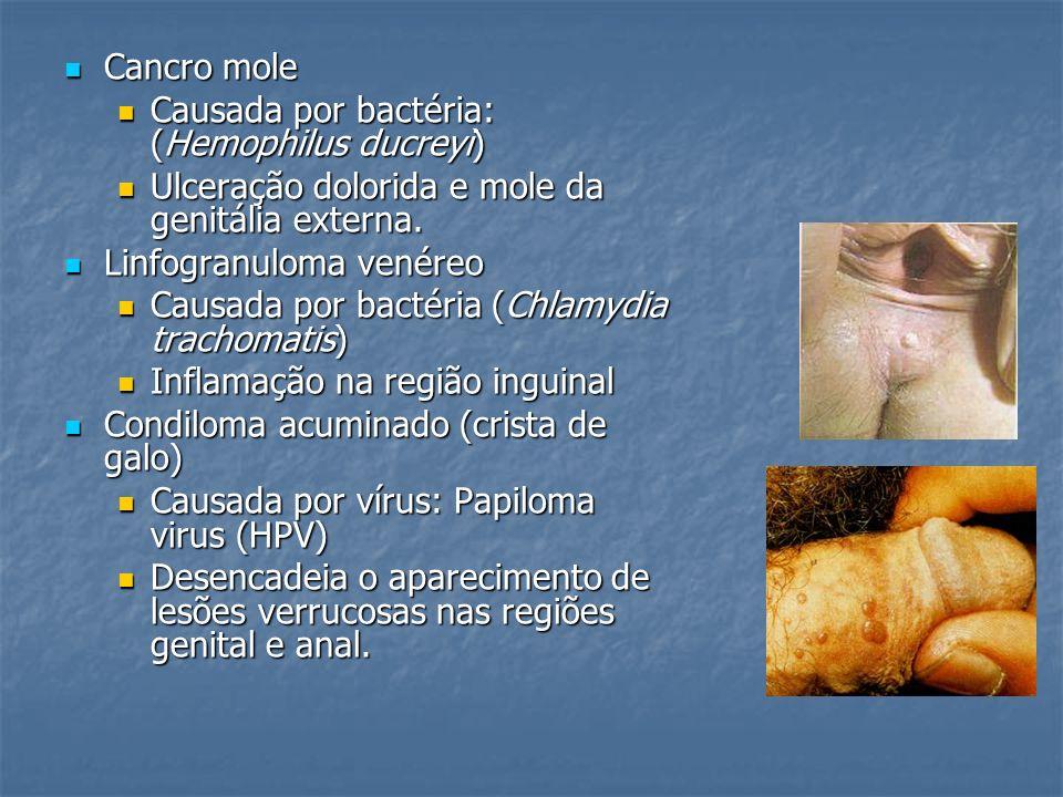 Cancro mole Cancro mole Causada por bactéria: (Hemophilus ducreyi) Causada por bactéria: (Hemophilus ducreyi) Ulceração dolorida e mole da genitália e