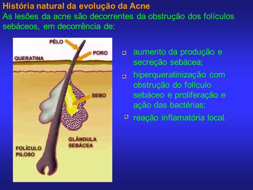 História natural da evolução da Acne As lesões da acne são decorrentes da obstrução dos folículos sebáceos, em decorrência de: aumento da produção e s