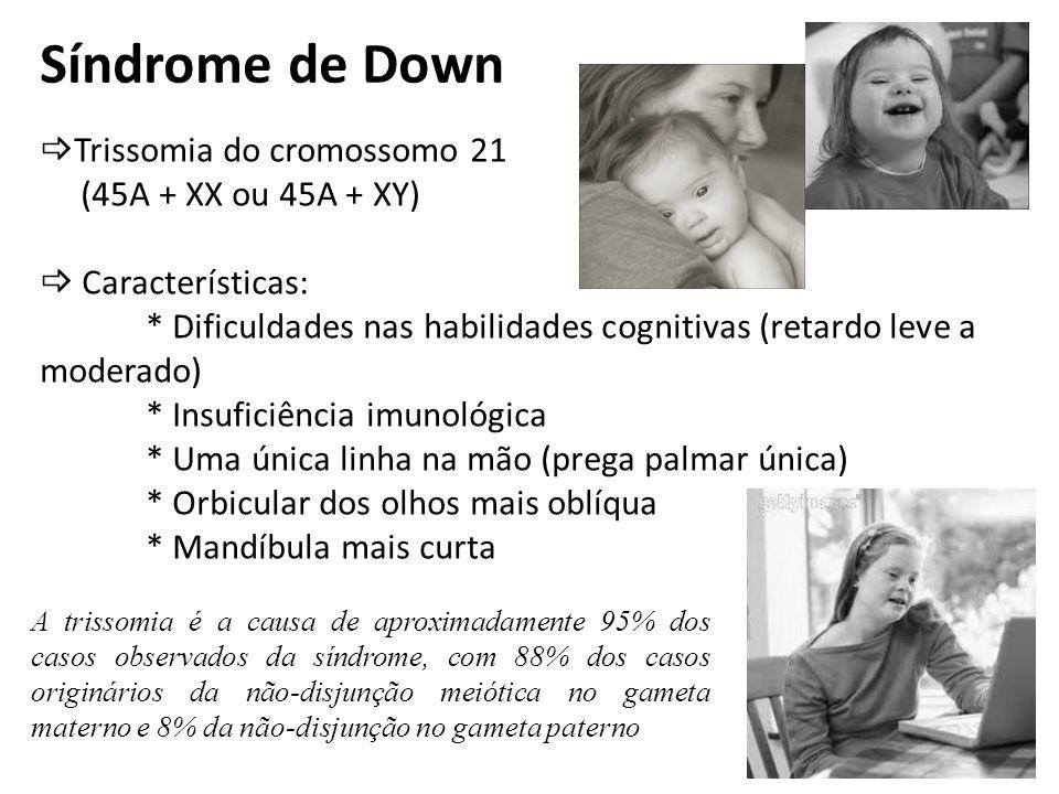 Síndrome de Down Trissomia do cromossomo 21 (45A + XX ou 45A + XY) Características: * Dificuldades nas habilidades cognitivas (retardo leve a moderado