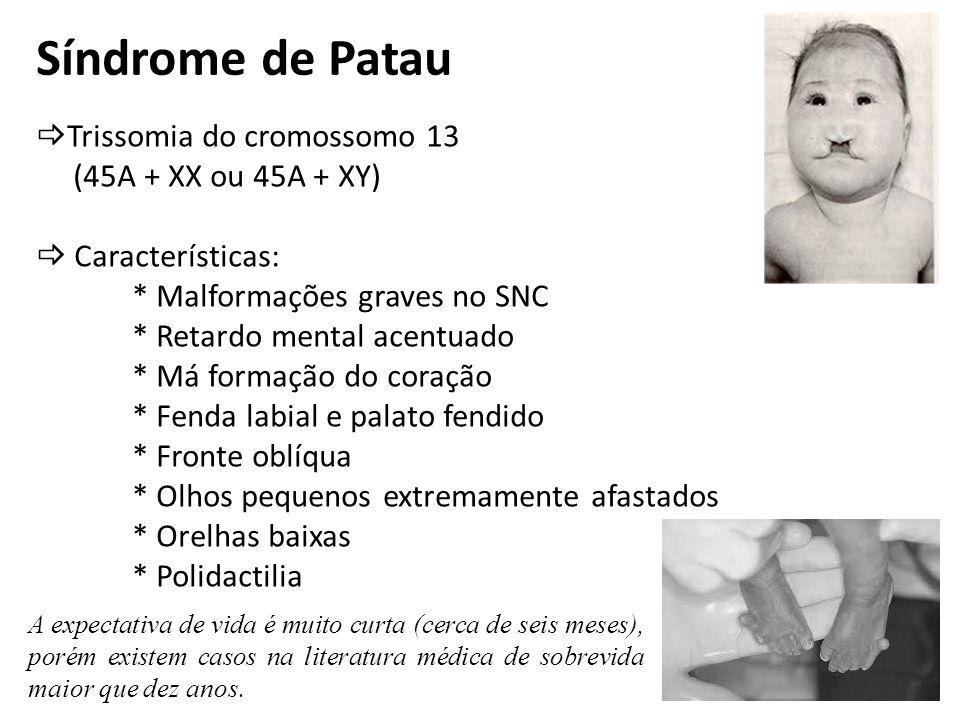 Síndrome de Patau Trissomia do cromossomo 13 (45A + XX ou 45A + XY) Características: * Malformações graves no SNC * Retardo mental acentuado * Má form