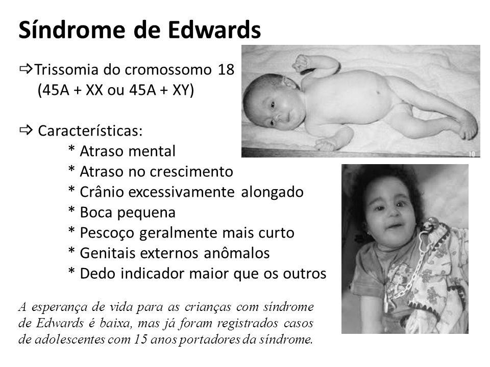Síndrome de Edwards Trissomia do cromossomo 18 (45A + XX ou 45A + XY) Características: * Atraso mental * Atraso no crescimento * Crânio excessivamente