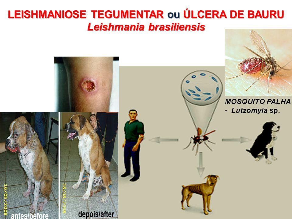 LEISHMANIOSE TEGUMENTAR ou ÚLCERA DE BAURU Leishmania brasiliensis MOSQUITO PALHA - Lutzomyia sp.