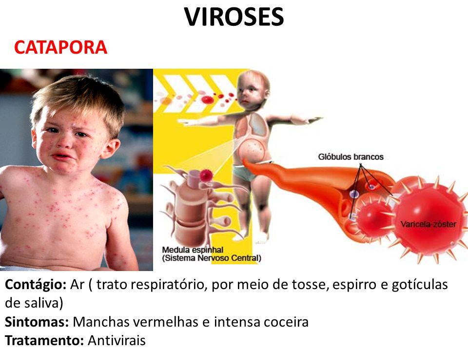 CATAPORA VIROSES Contágio: Ar ( trato respiratório, por meio de tosse, espirro e gotículas de saliva) Sintomas: Manchas vermelhas e intensa coceira Tr