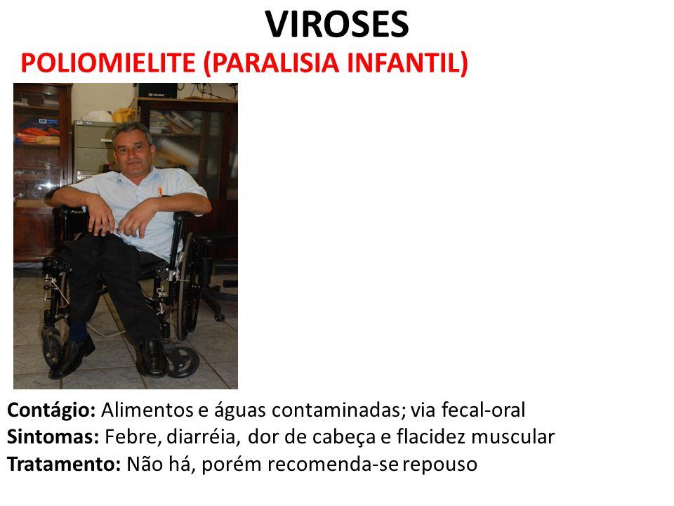 POLIOMIELITE (PARALISIA INFANTIL) VIROSES Contágio: Alimentos e águas contaminadas; via fecal-oral Sintomas: Febre, diarréia, dor de cabeça e flacidez