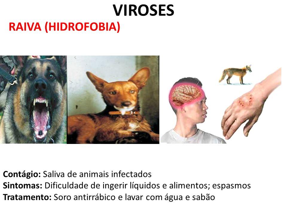 RAIVA (HIDROFOBIA) VIROSES Contágio: Saliva de animais infectados Sintomas: Dificuldade de ingerir líquidos e alimentos; espasmos Tratamento: Soro ant
