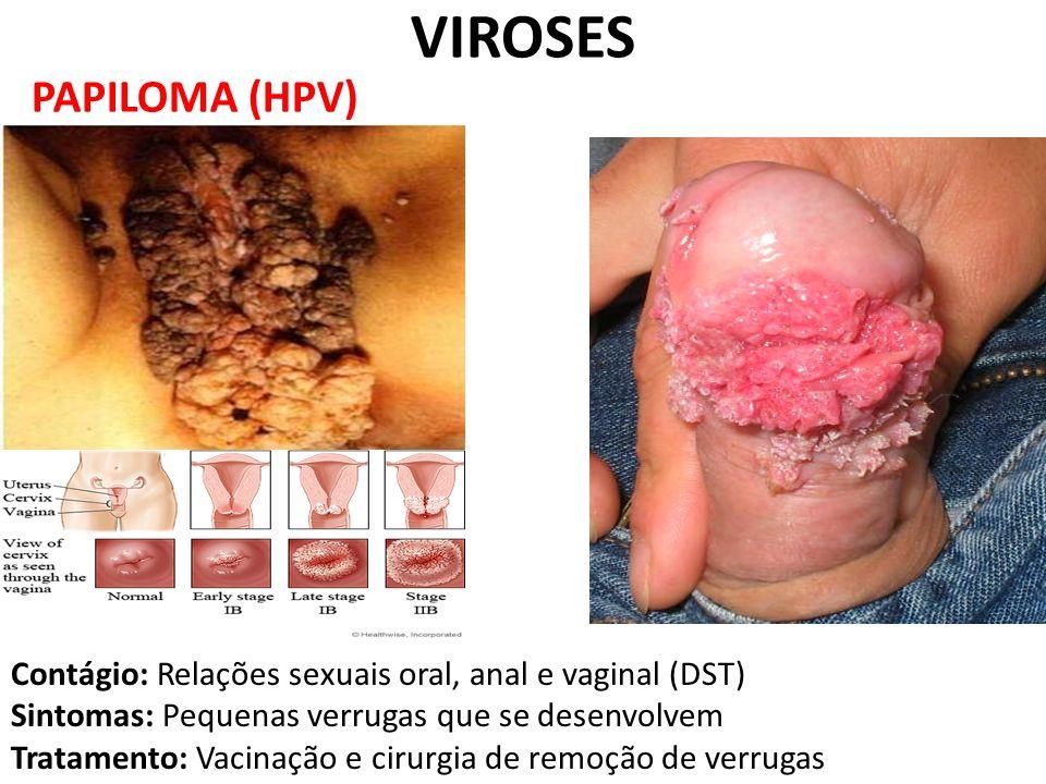 PAPILOMA (HPV) VIROSES Contágio: Relações sexuais oral, anal e vaginal (DST) Sintomas: Pequenas verrugas que se desenvolvem Tratamento: Vacinação e ci