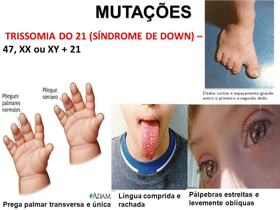 MUTAÇÕES MUTAÇÕES TRISSOMIA DO 21 (SÍNDROME DE DOWN) – 47, XX ou XY + 21 Prega palmar transversa e única Língua comprida e rachada Pálpebras estreitas