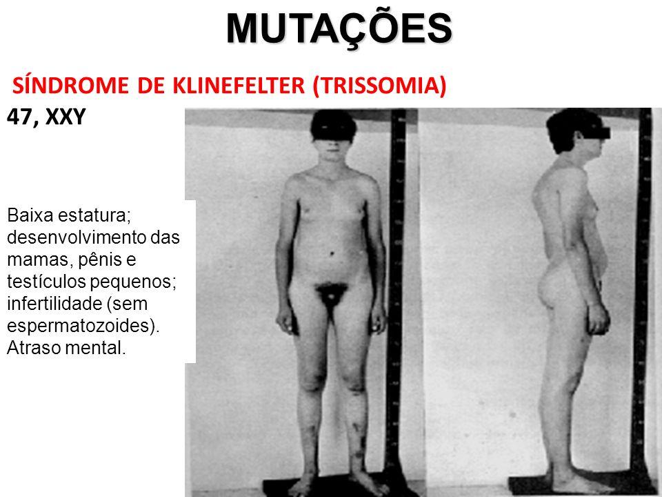 MUTAÇÕES MUTAÇÕES SÍNDROME DE KLINEFELTER (TRISSOMIA) 47, XXY Baixa estatura; desenvolvimento das mamas, pênis e testículos pequenos; infertilidade (sem espermatozoides).